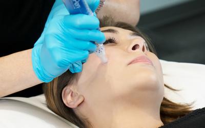 skinpen-microneedling-fda-approved-treatment